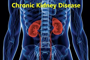 50+ Women are more prone to Chronic Kidney Disease