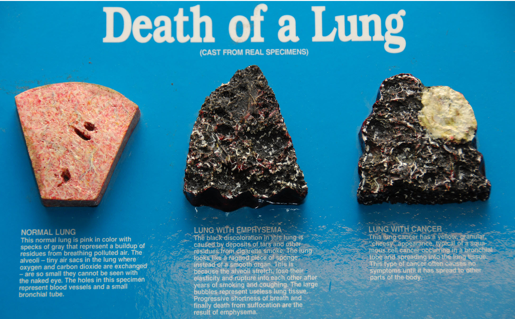 health news, mapmyhealth, lung cancer, fitness, smoke, smoker,